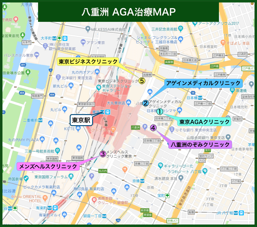 八重洲AGA治療MAP