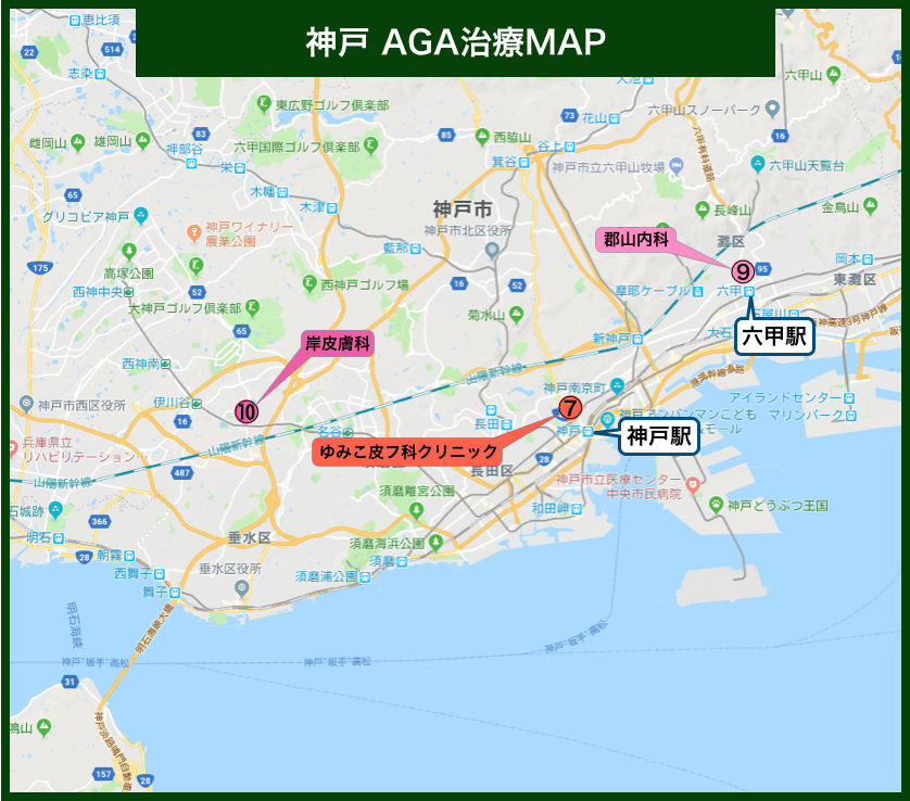 神戸AGA治療MAP