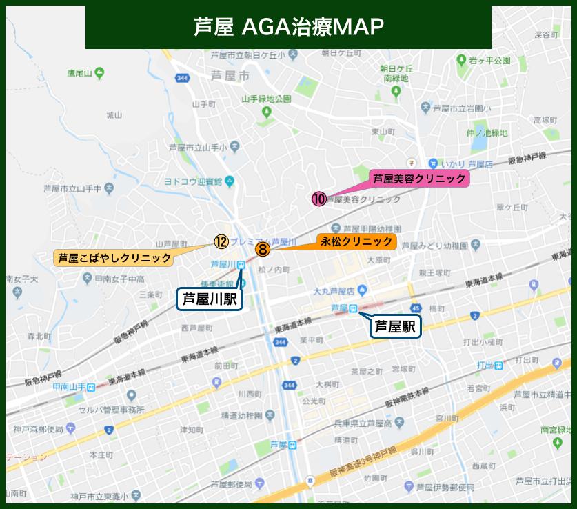 芦屋AGA治療MAP