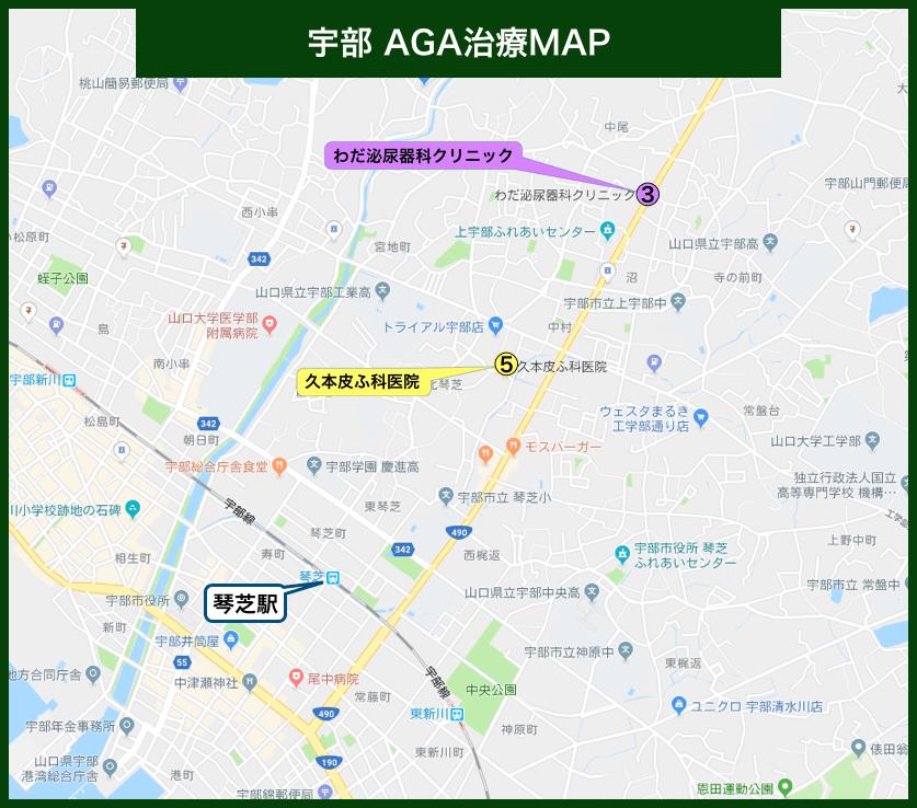 宇部AGA治療MAP