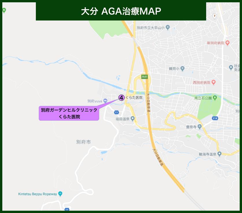 大分AGA治療MAP