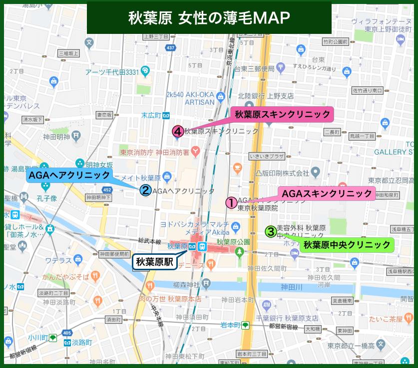 秋葉原女性の薄毛MAP