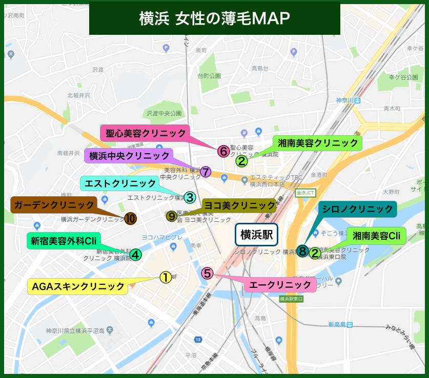 横浜女性の薄毛MAP