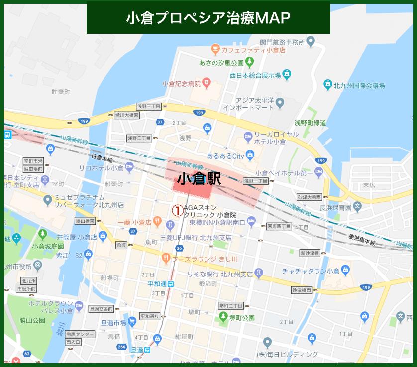 小倉プロペシア治療MAP