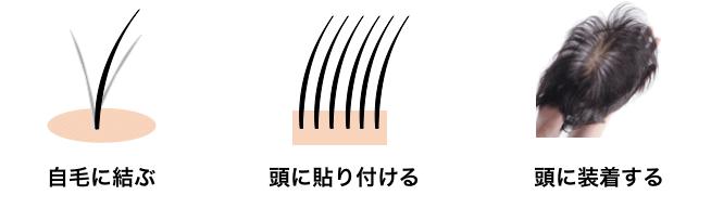 カツラ増毛の例