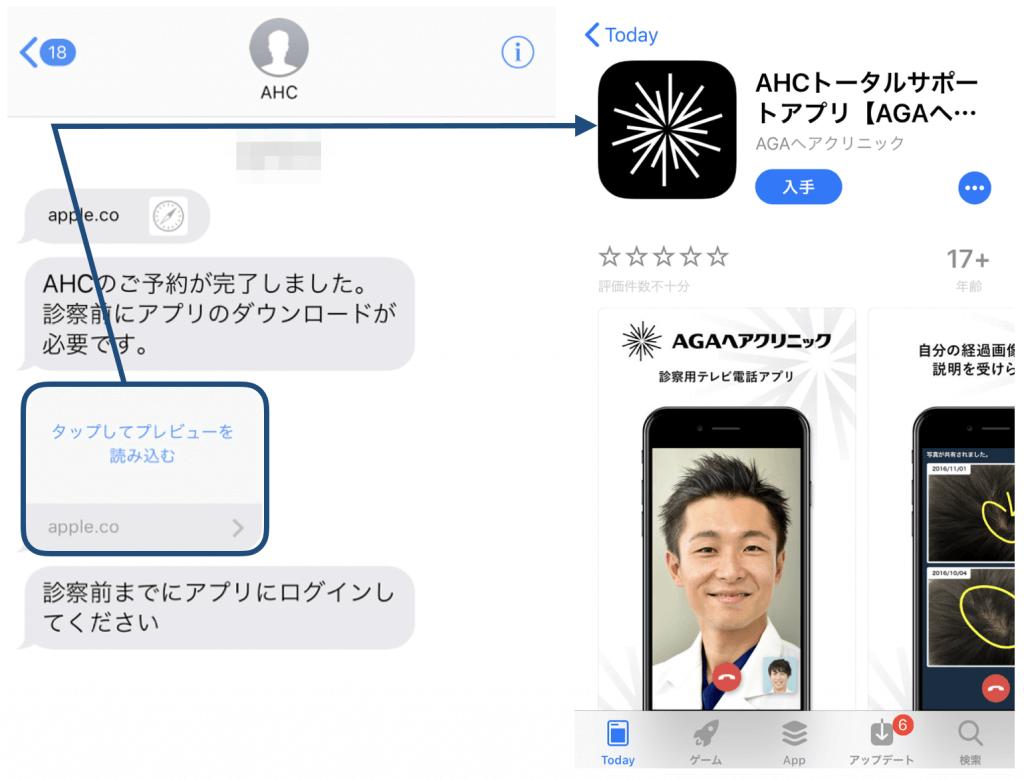 AGAヘアクリニックから届くショートメール