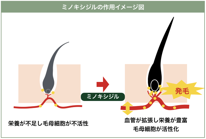 ミノキシジルの作用イメージ
