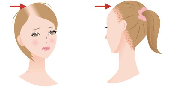 牽引性(けんいんせい)脱毛症のイメージ