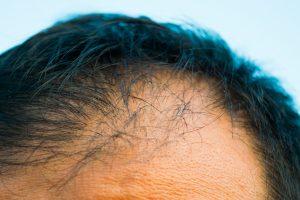 薄毛が進行している頭皮