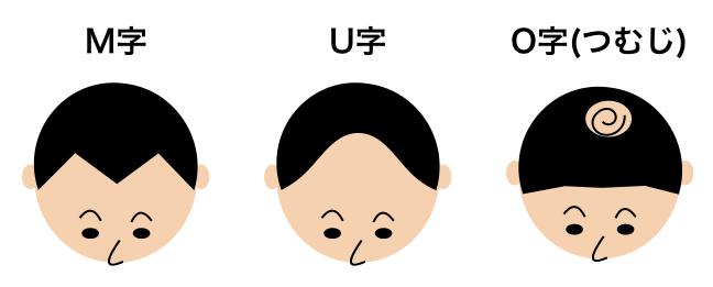 M字・U字・O字ハゲのイメージ