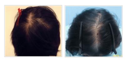 女性男性型脱毛症(FAGA)のイメージ