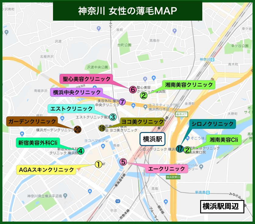 神奈川女性の薄毛MAP