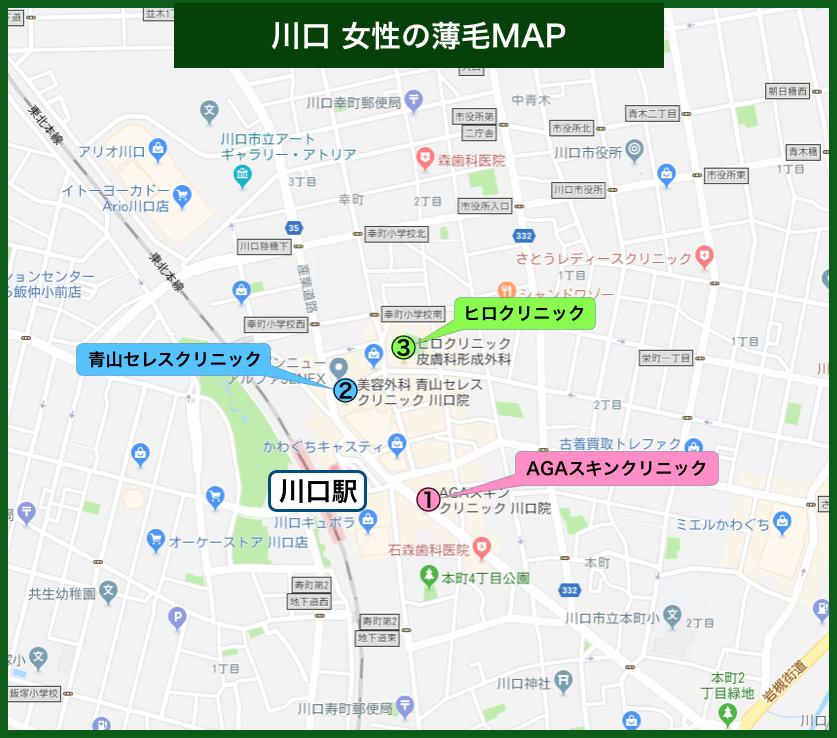 川口女性の薄毛MAP