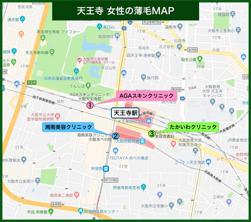 天王寺女性の薄毛MAP