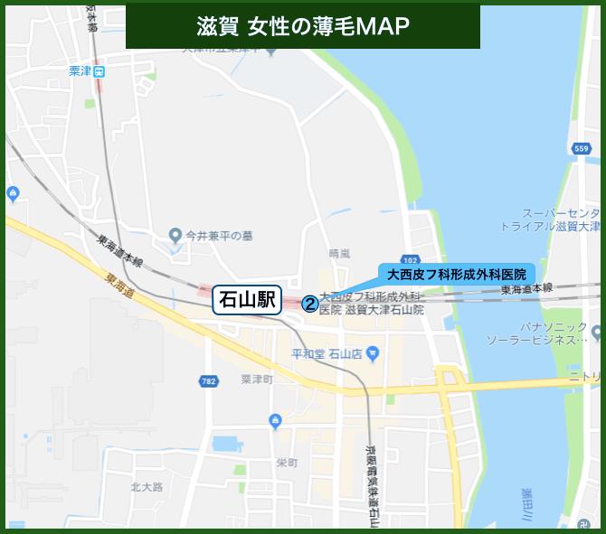 滋賀女性の薄毛MAP