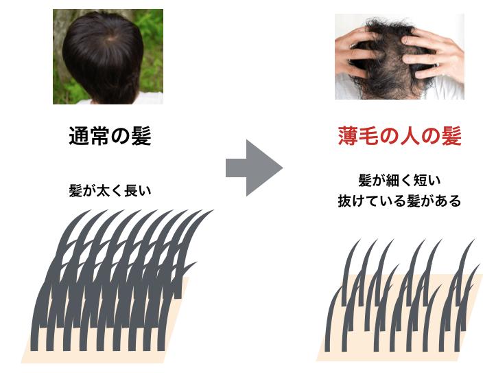 髪がスカスカな状態の例