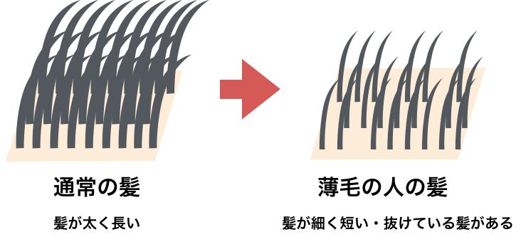 薄毛のイメージ