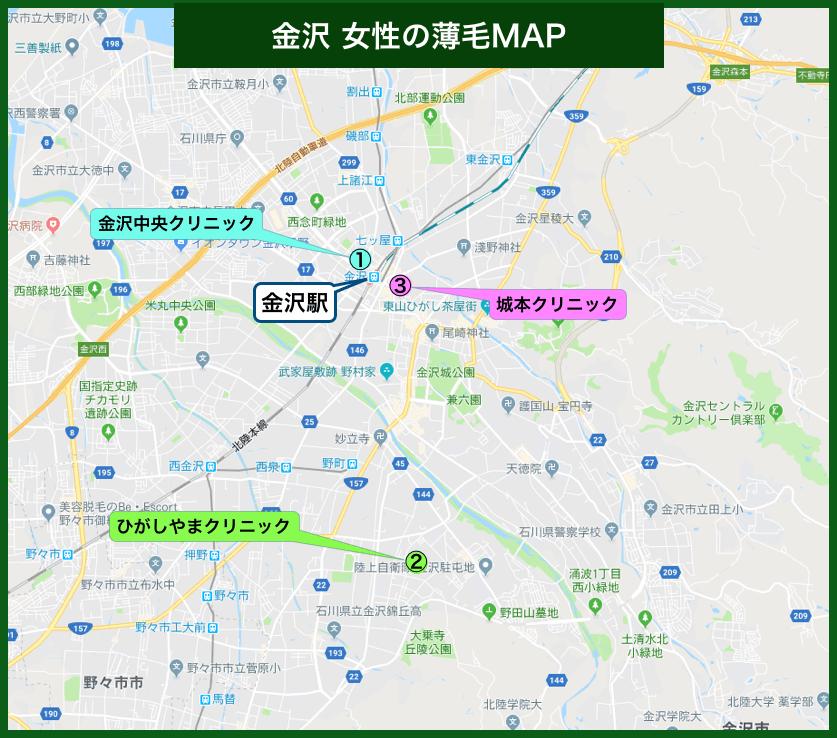 金沢女性の薄毛MAP