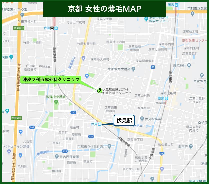 京都女性の薄毛MAP