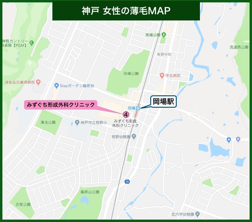 神戸女性の薄毛MAP
