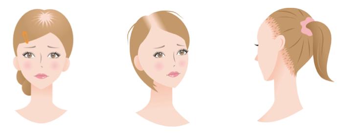 女性の薄毛のイメージ