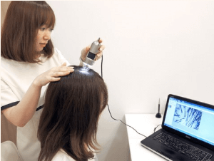 東京ビューティークリニックで行う治療までの流れ「カウンセリング・頭皮チェック」イメージ