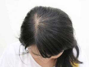 東京ビューティークリニックで行う治療までの流れ「頭部の写真撮影」イメージ
