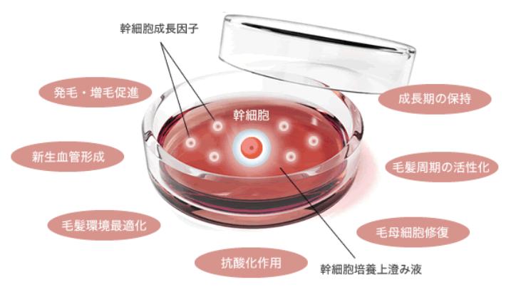 AGA幹細胞再生治療のイメージ