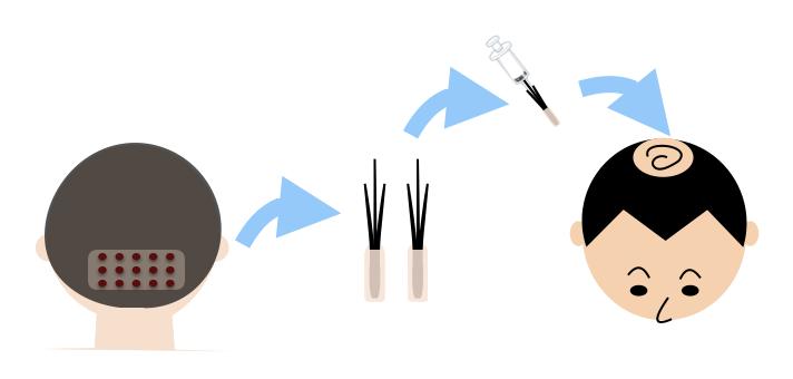 自毛植毛のイメージ