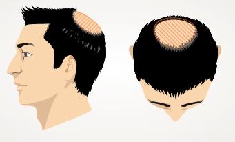 薄毛のケース3