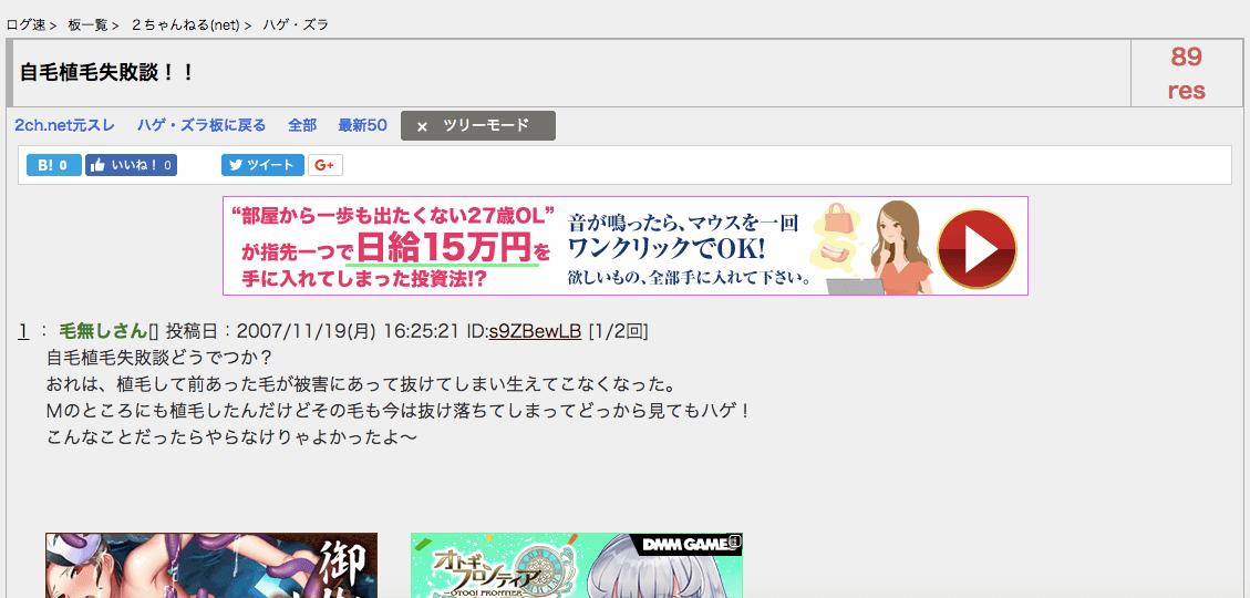 2chスレ『自毛植毛失敗談!!』のイメージ