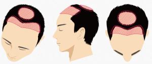 前頭部・頭頂部のイメージ
