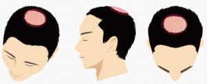 頭頂部・つむじのイメージ