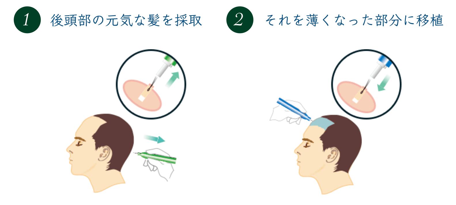植毛治療のイメージ