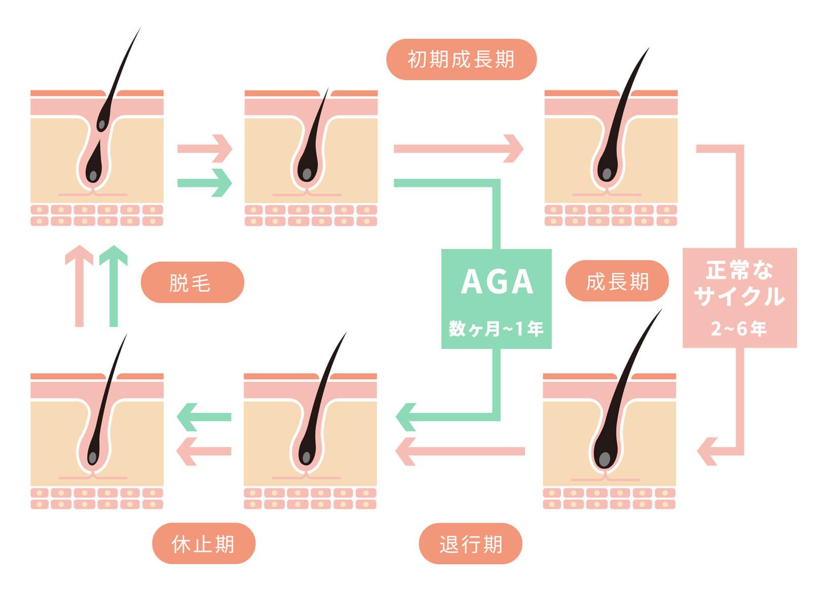 正常な髪の成長サイクルとAGAのサイクル