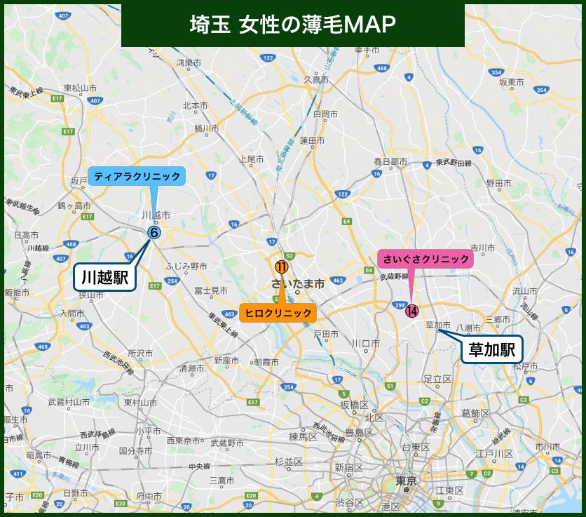 埼玉 女性の薄毛MAP