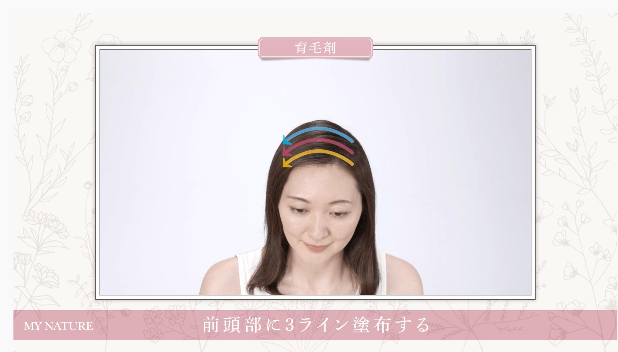 【マイナチュレ】育毛剤の使い方 前頭部
