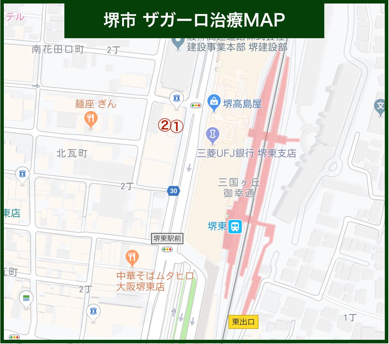 堺市 ザガーロ治療MAP