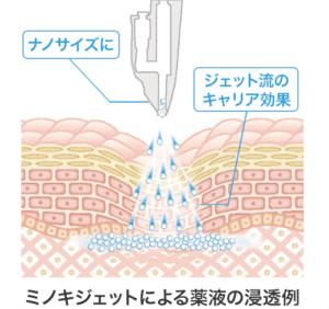 MINOXI JET(ミノキジェット)の薬液浸透イメージ