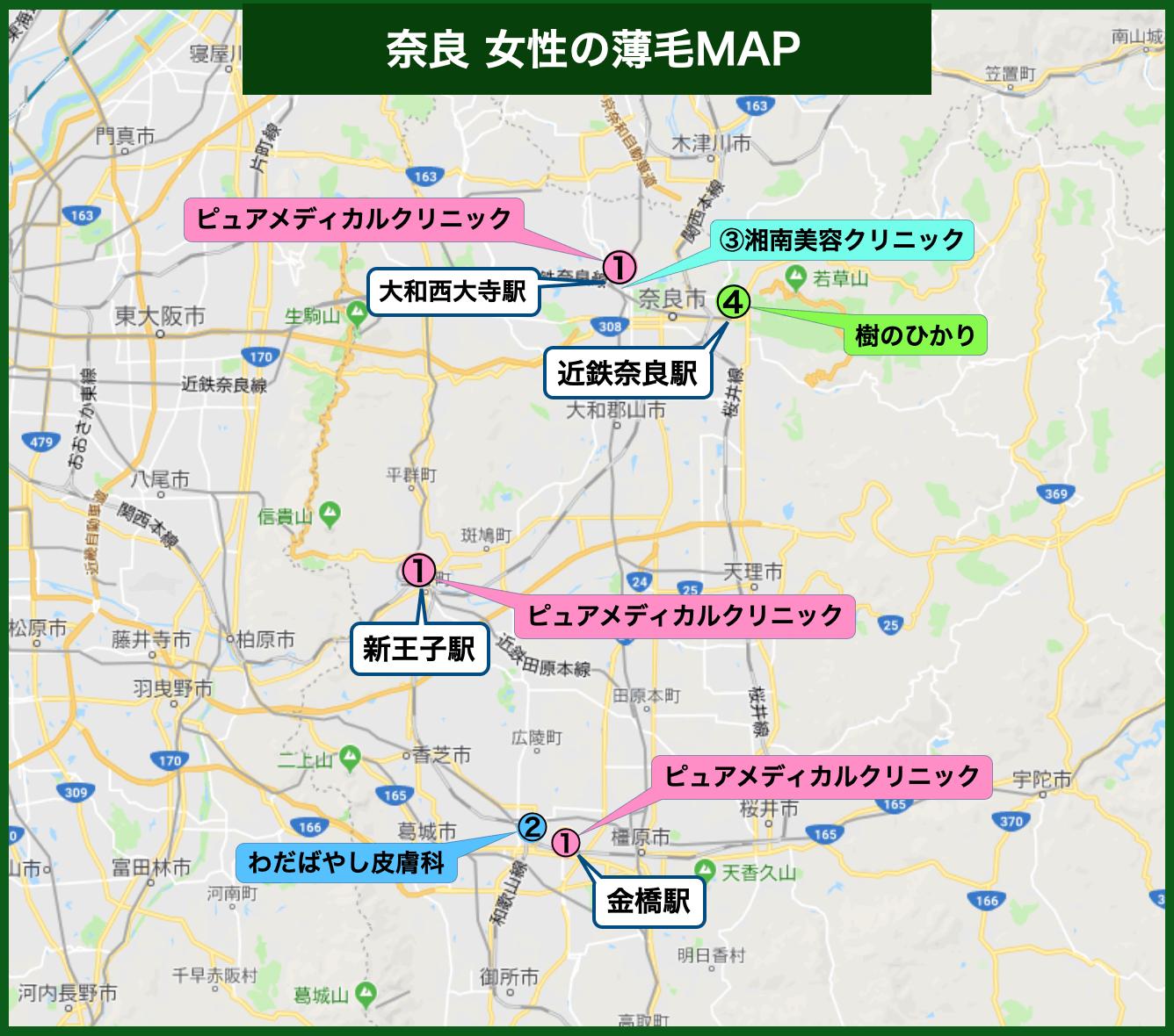 奈良 女性の薄毛MAP