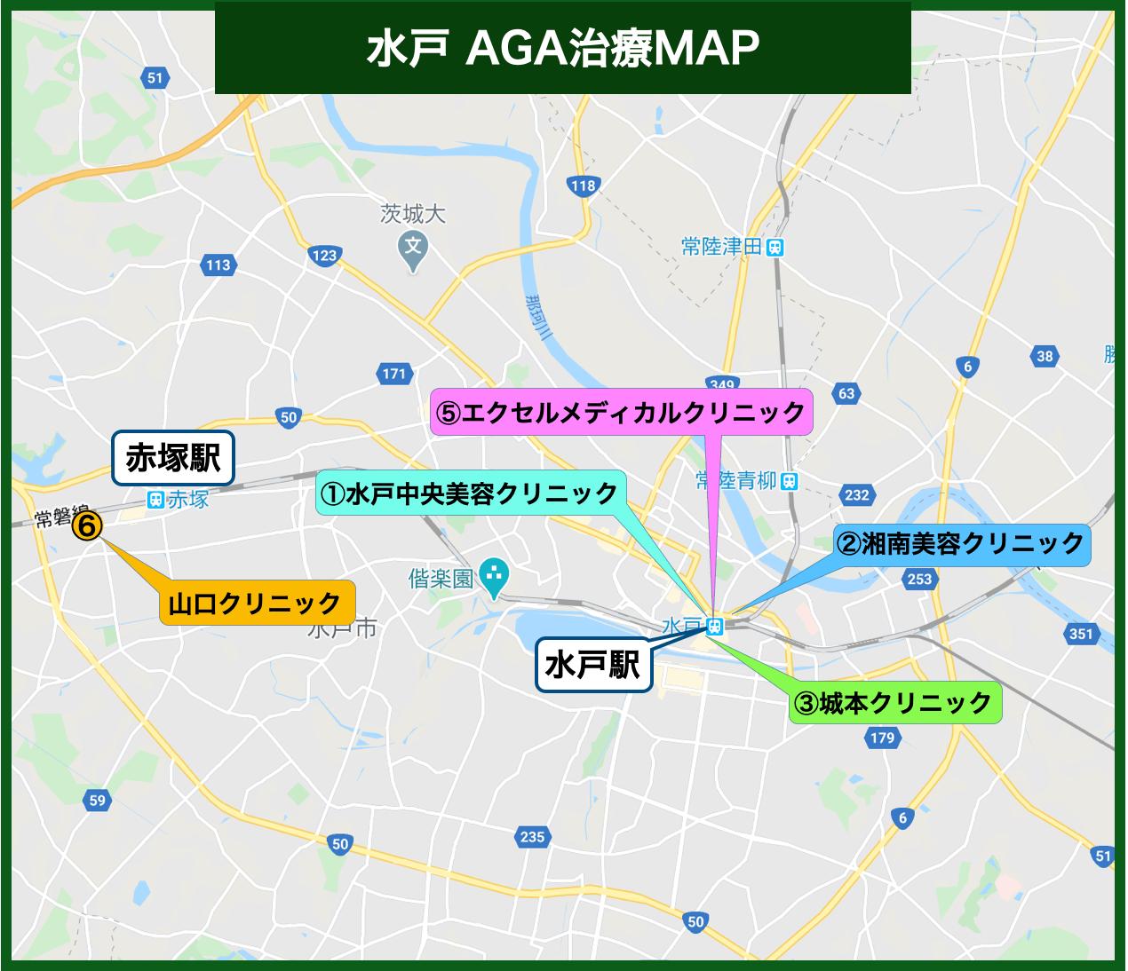 水戸 AGA治療MAP