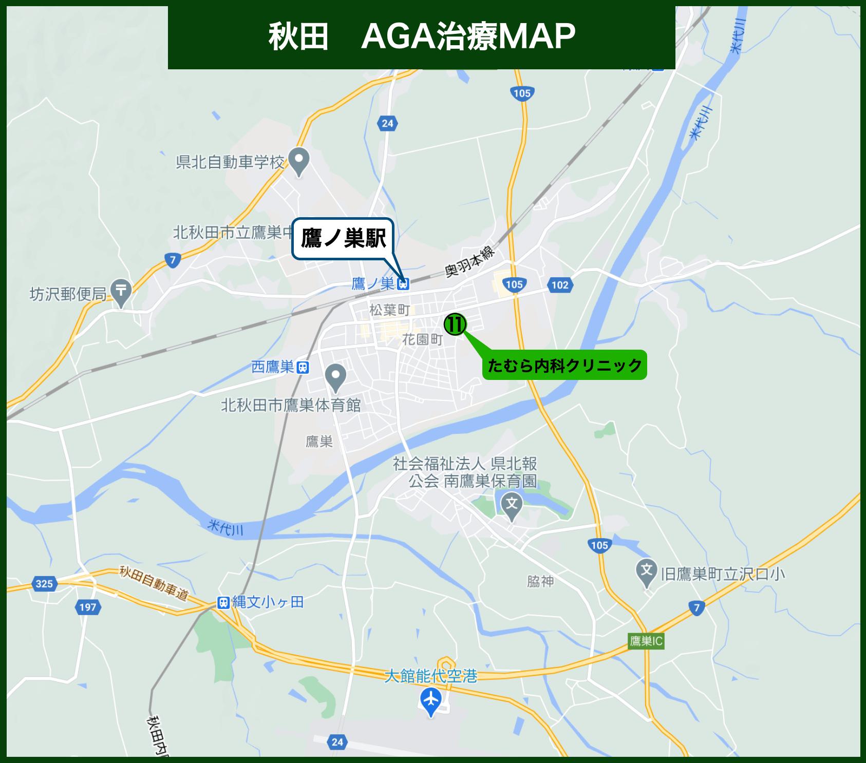 秋田AGA治療MAP