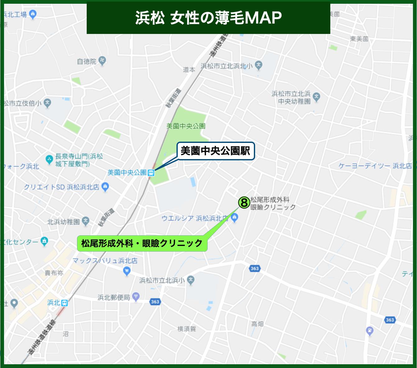 浜松 女性の薄毛MAP