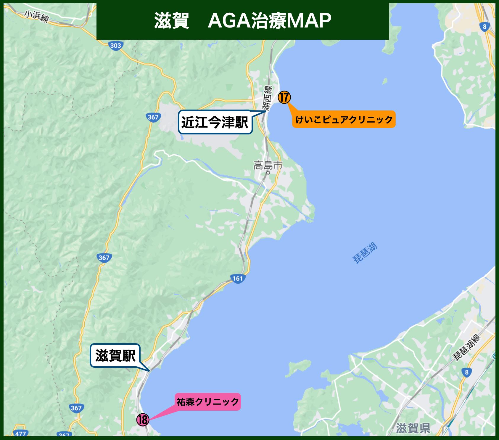 滋賀AGA治療MAP