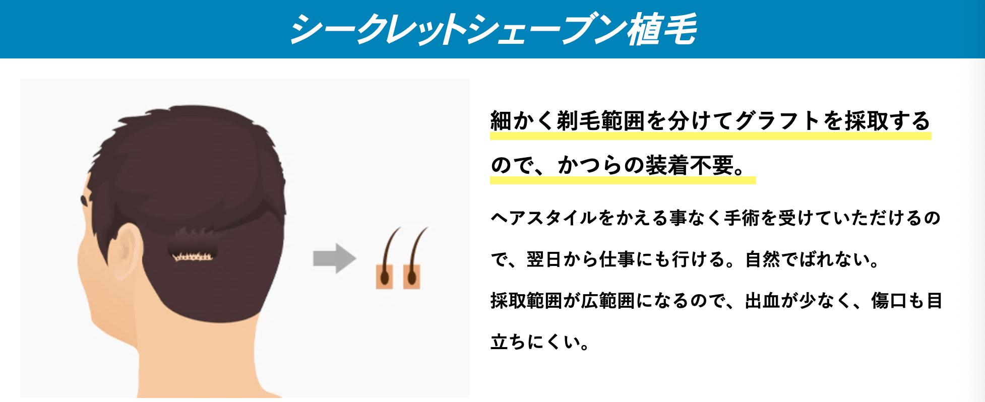 シークレットシェーブン植毛のイメージ