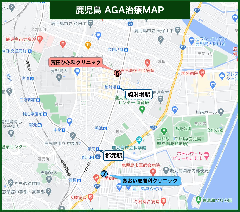 鹿児島 AGA治療MAP2
