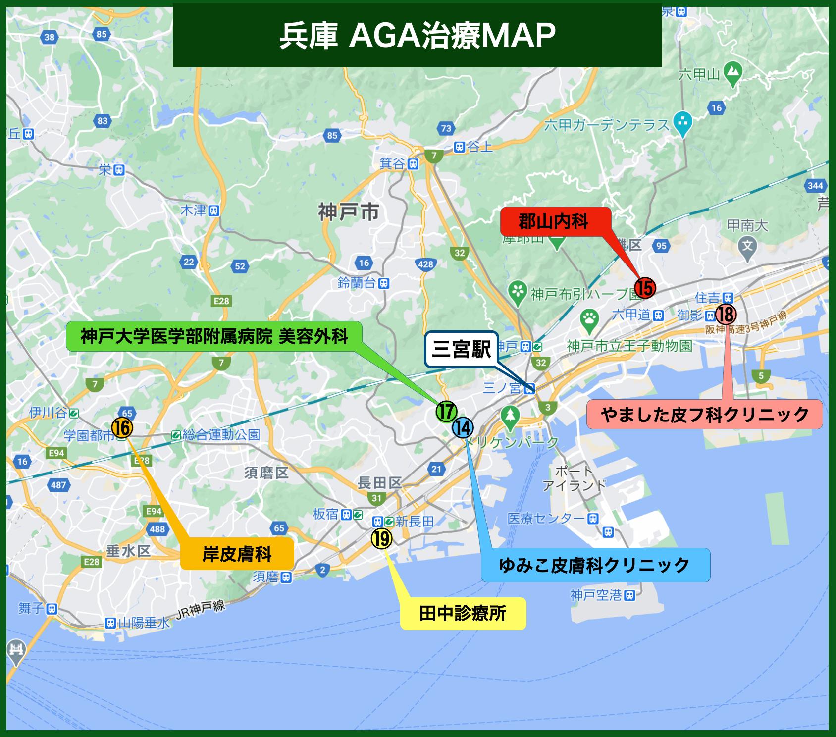 兵庫AGA治療MAP