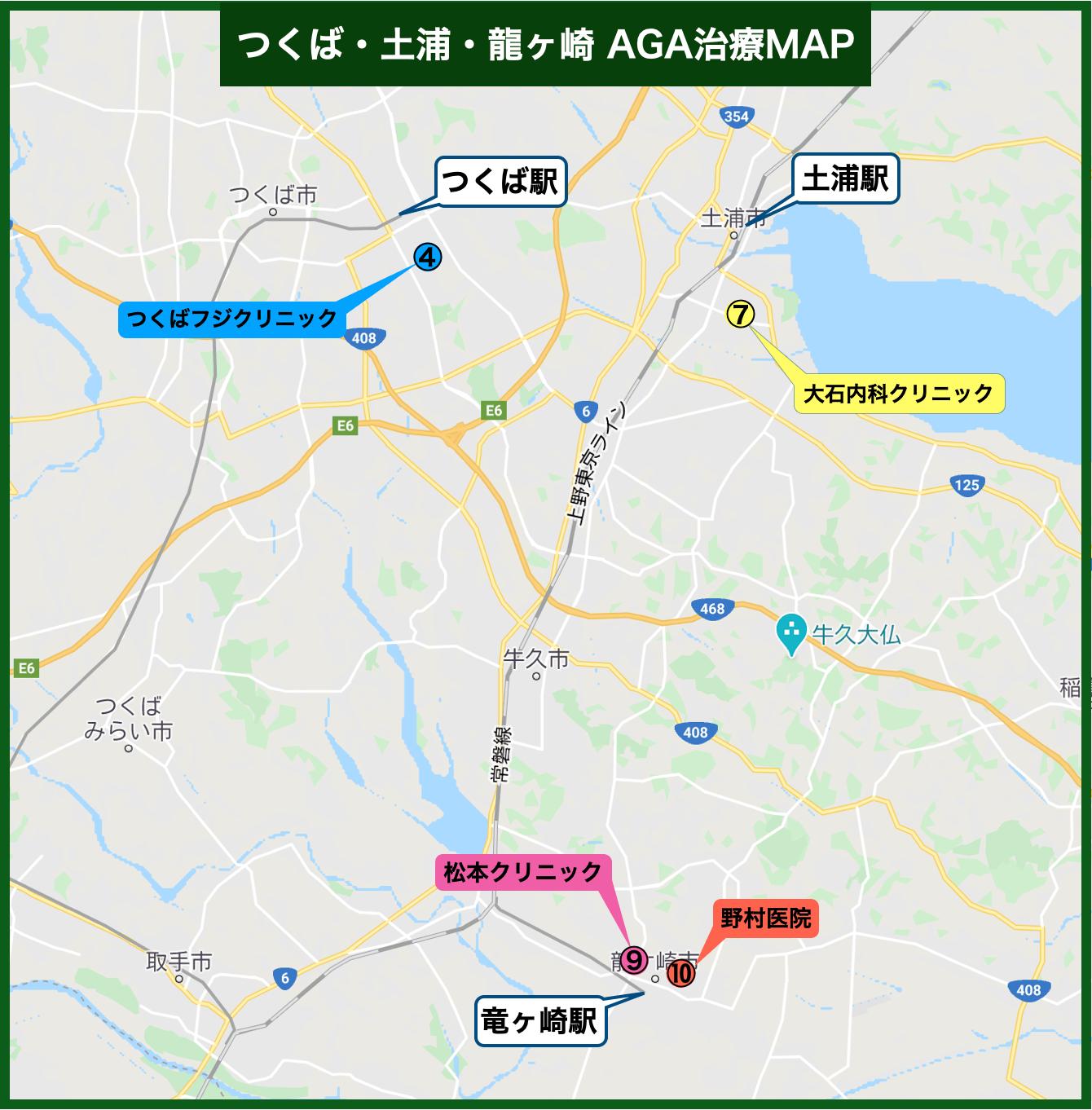 つくば・土浦・龍ヶ崎 AGA治療MAP