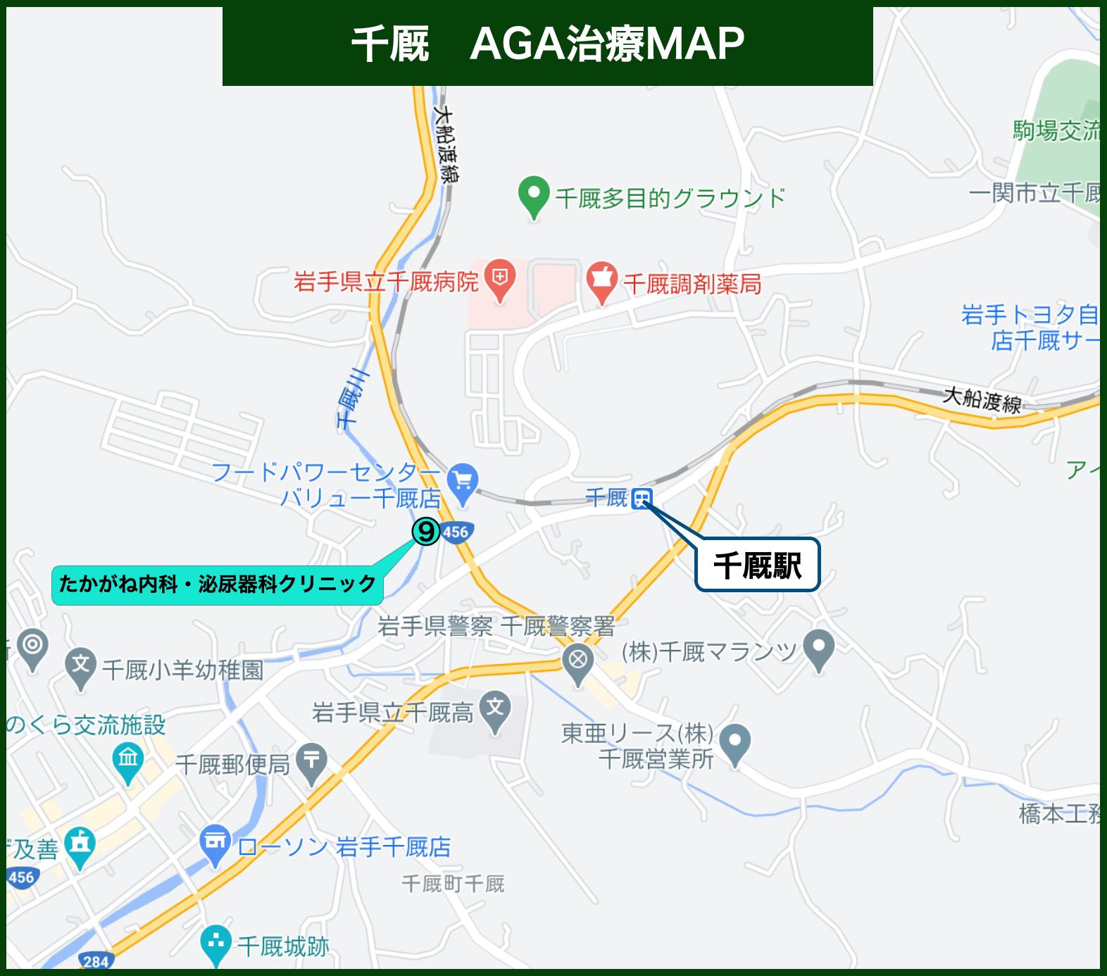 千厩AGA治療MAP