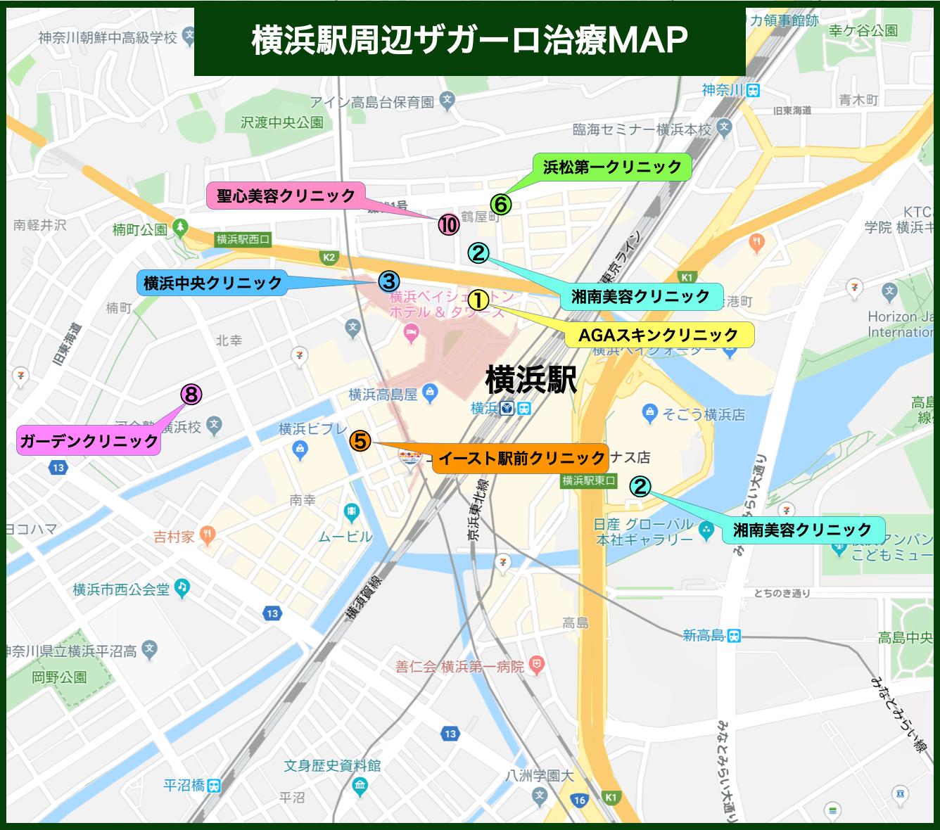 横浜駅周辺ザガーロ治療MAP